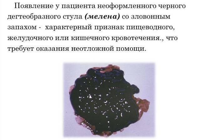 melena-1.jpg