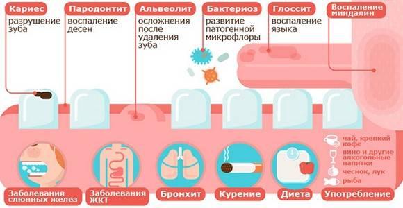 prichiny-poyavleniya-zapakha-kala-izo-rta.jpg