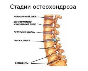 osteohondroz-stadii4-300x242.jpg
