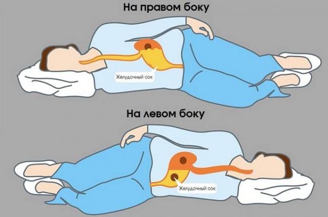 na-kakom-boku-spat-pri-izzhoge-5.jpg