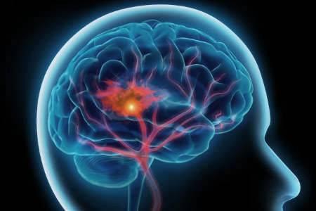 dysphagia-6.jpg