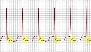tachycardia-1.jpg