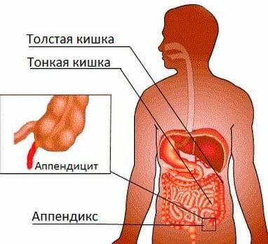appendicit-u-cheloveka.jpg