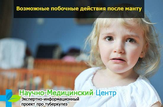 pobochnue_effectu_posle_manty_medtub_s573-min.jpg