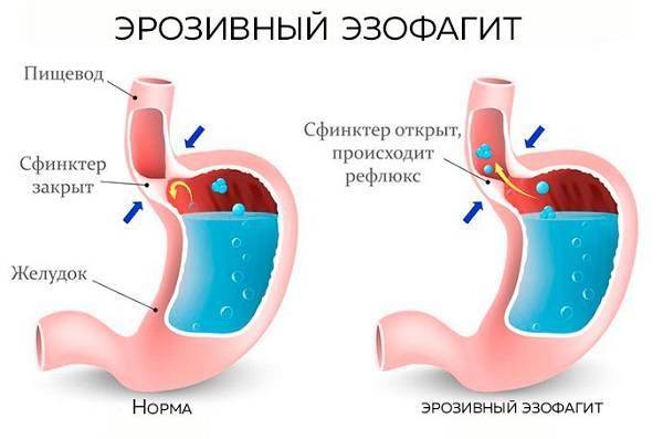 Erozivnyj-ezofagit.jpg