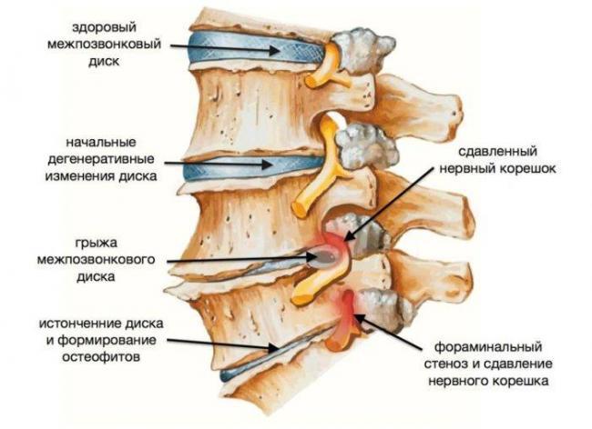 osteoarthritis-treatment-e1544725345651.jpg