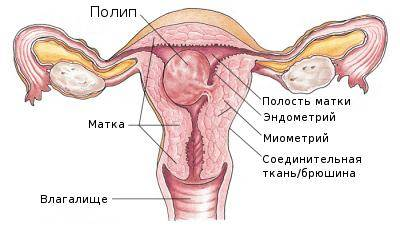 Полипоз-эндометрия.jpg