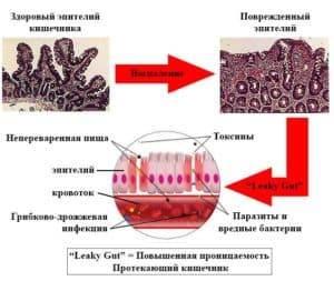 belkovye_toksiny_kishechnika_1-300x253.jpg
