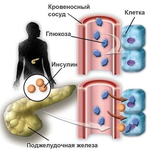 Saharnyj-diabet.jpg