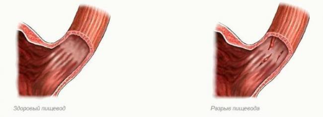 diagnostika-i-lechenie-razryva-pishchevoda-2.jpg