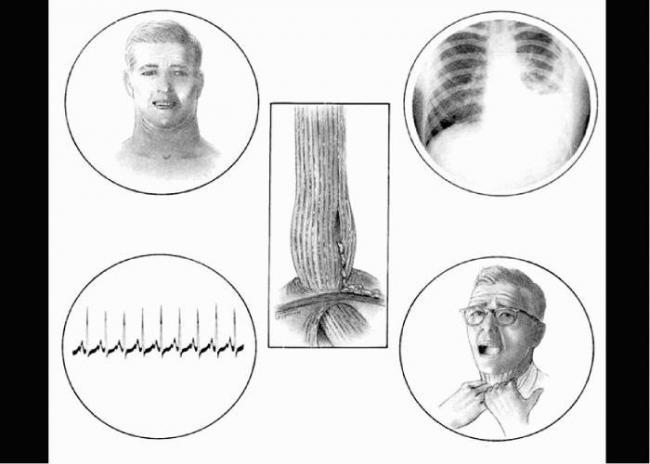 diagnostika-i-lechenie-razryva-pishchevoda-4.jpg