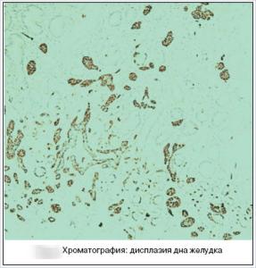 hromatografia-1-287x300.png