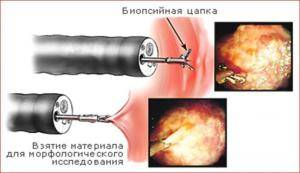 biopsiya-300x173.png