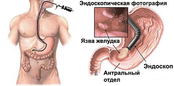 endoskopiya-zheludka.png