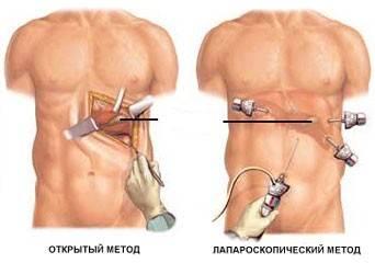 diagnosticheskaya-laparoskopiya.jpg