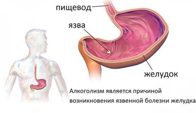 bolezni-ot-alkogolya.jpg