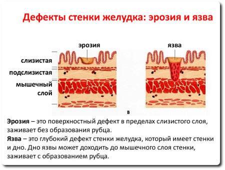 eroziya-zheludka-3.jpg