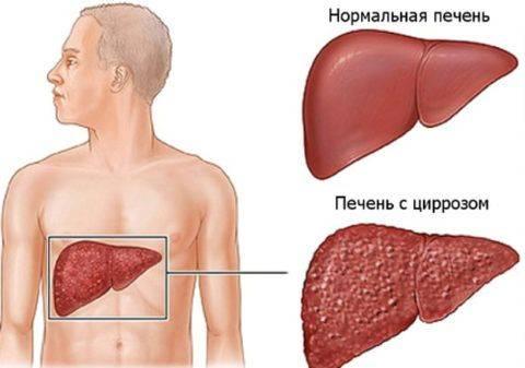 simptomy-tsirroza-pecheni-480x337.jpg