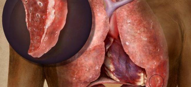 Симптомы и лечение туберкулеза печени
