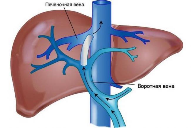 oslozhneniya-tsirroza-pecheni-3.jpg