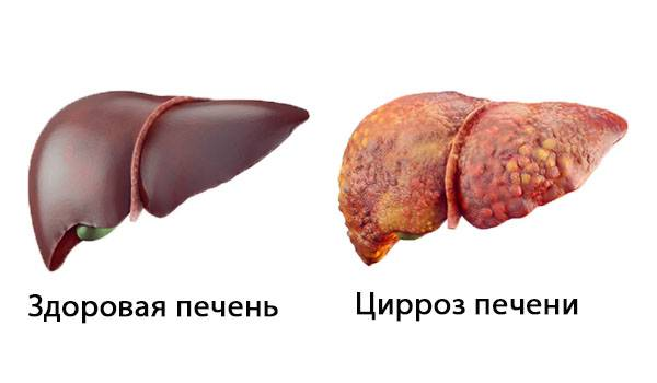 simptomy-pri-cirroze-pecheni.jpg