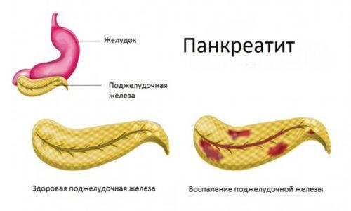 pankreatit-12-500x300.jpg
