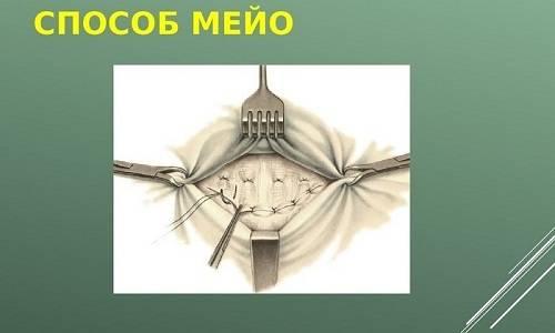 meio-metod.jpg