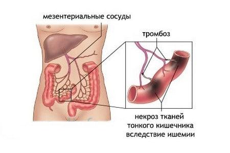 nekroz-tonkogo-kishechnika.png