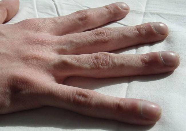 izmenenija-palcev-pri-mukoviscidoz.jpg