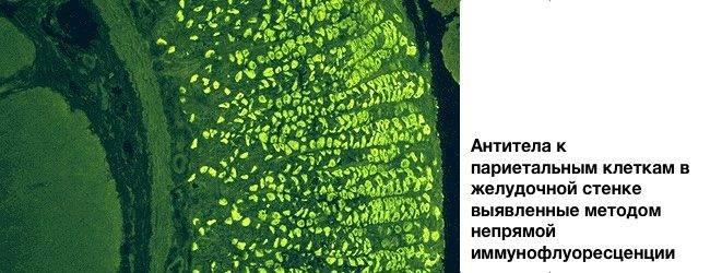 antitela-k-parietalnym-kletkam-zheludka.jpg