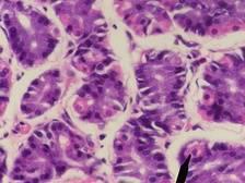 im224-320px-Parietal_cells.jpg