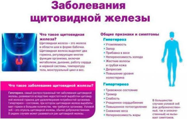 Zabolevaniya-shhitovidnoj-zhelezy-e1516259972899-656x420.jpg