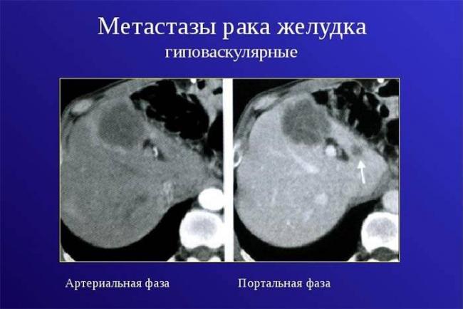 metastazy-raka-zheludka-.jpg