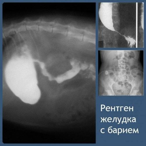 rentgen-zheludka-s-bariem-11-650x650.jpg