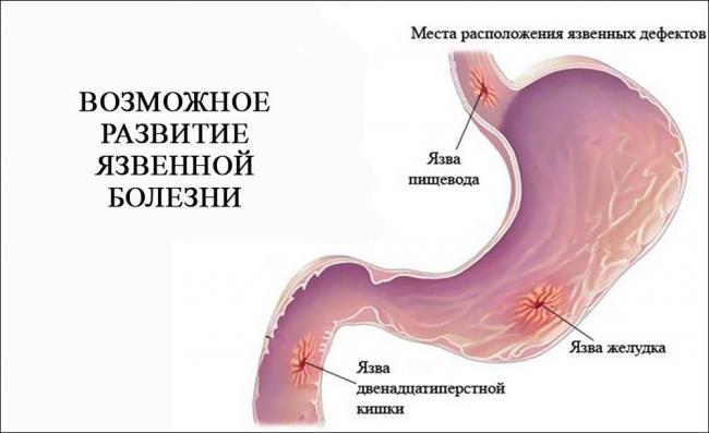 vozmozhnoe-razvitie-jazvennoj-bolezni.jpg