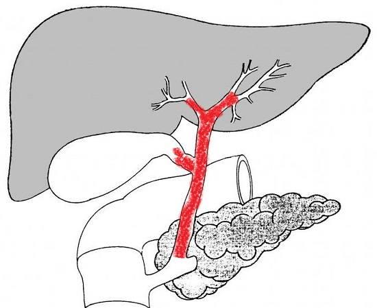 Holangit-simptomy.jpg