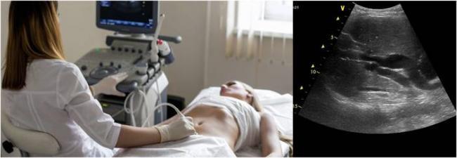 diagnostika-holangita-s-pomoshchyu-uzi.jpg