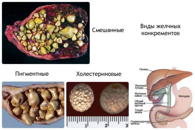 image5-1.jpg