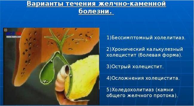 osobennosti-techeniya-zhelchnokamennoj-bolezni.jpg