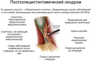 postholecistjektomicheskij-sindrom-320x214.png