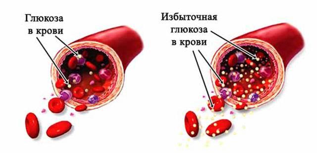 Povyshenie-urovnya-glyukozy-v-krovi.jpg