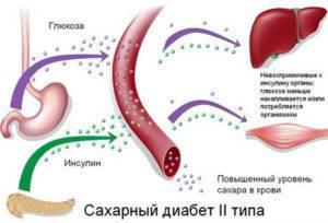 Uchastie-pecheni-v-saharnom-diabete-300x204.jpg