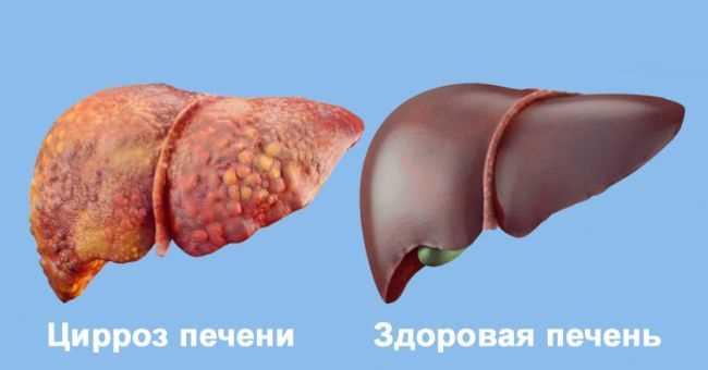 lechenie-pecheni-posle-alkogolya-preparati-dlya-ochistki-i-vosstanovleniya-02.jpg