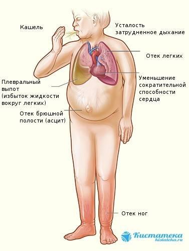simptomy-ascita.jpg