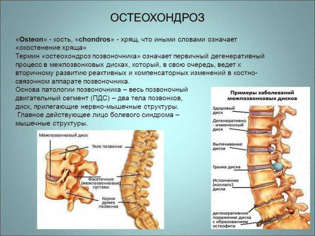 osteohondroz.jpg