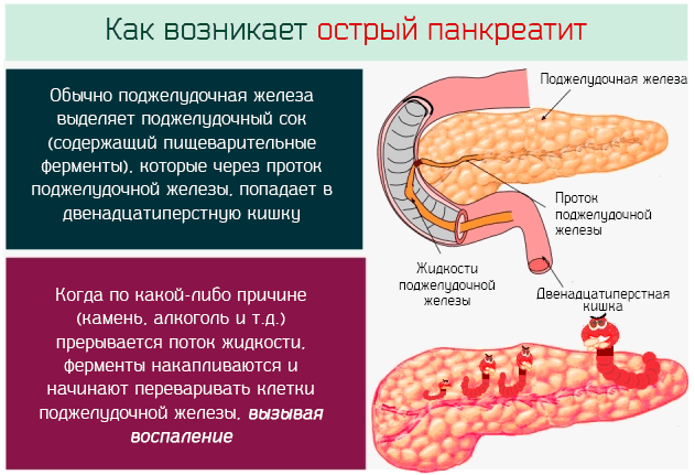pankreatit.png