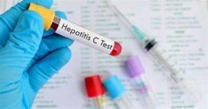 hepatitis_C-300x157.jpg