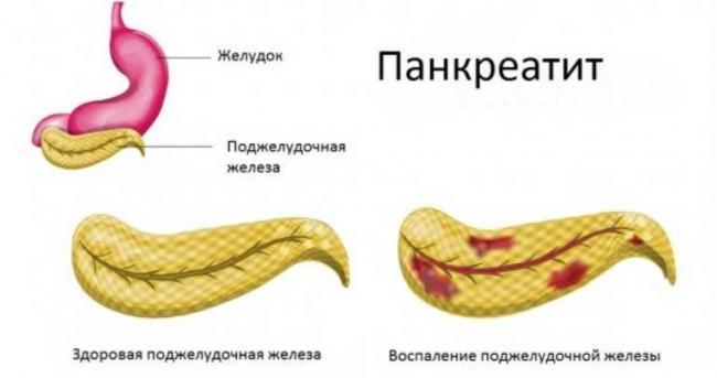 Pankreatit-1.jpg