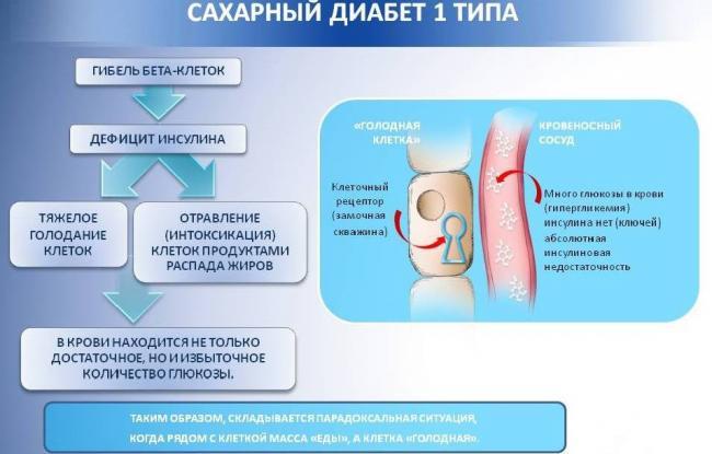 Saharnyj-diabet-1-tipa.jpg