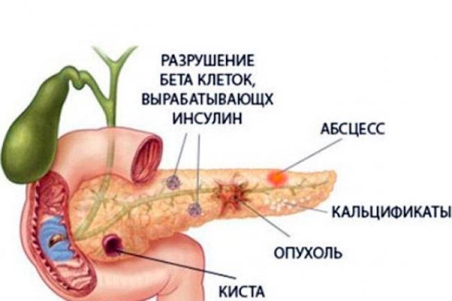 Parenhimatoznyj-pankreatit.jpg